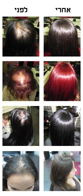 HAIR COVER – כיסוי שיער דליל והתקרחות לנשים