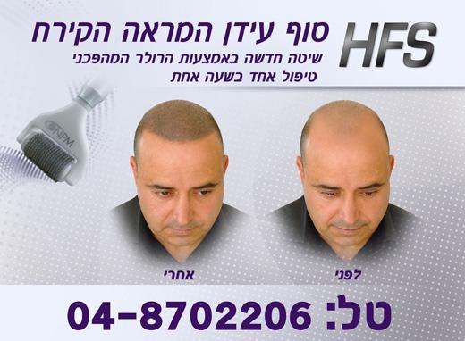 הראש לא נשאר קירח - משה אלול הבעלים של NPM עבר הדמיית זקיקי שיער