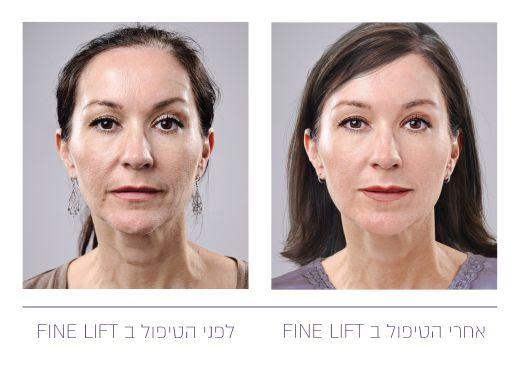 promedics_before and after_Page_5 לפני ואחרי - טיפול הסופ ליפט בשיטת ה- FINE LIFT. צילום- יחצ חול