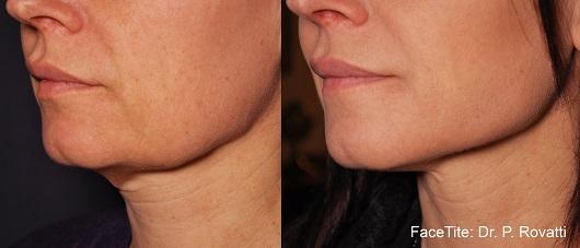 פייס טייט - לפני ואחרי הטיפול. צילום- יחצ פרומדיקס