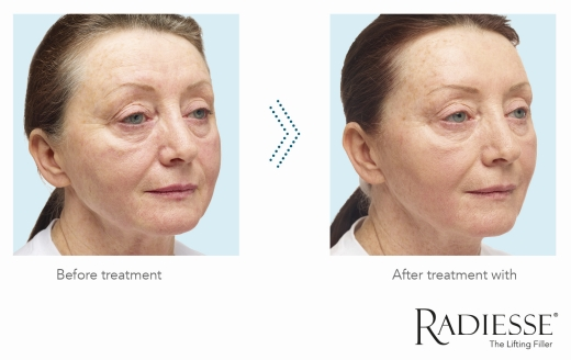 RAD B&A Image Full Facial and Improvement Skin Quality