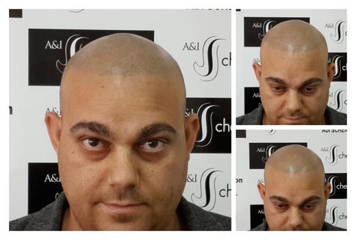 יש פתרון להתקרחות שיער
