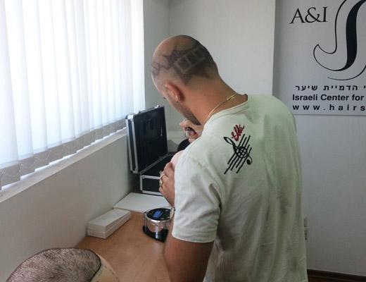 הצטרפו להצלחה של הדמיית זקיקי שיער