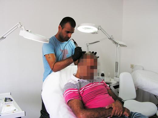 הדמיית שיער בתל אביב עדי שנדל
