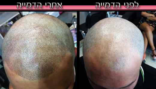 לפני ואחרי טיפול הדמיית שיער - אבי משיח