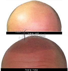 לפני ואחרי טיפול הדמיית שיער - עדי שנדל