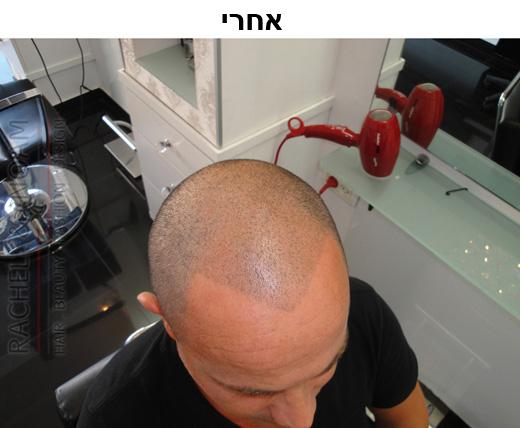 לפני ואחרי הדמיית זקיקי שיער בהרצליה