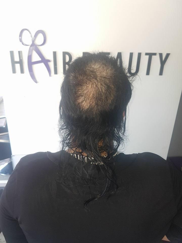 מילוי שיער בלייזר בצפון – Hair Beauty עכו