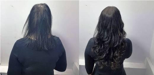 תוספות שיער בפאות חלקיות