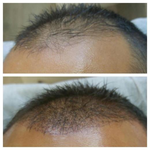 נייל סטודיו פתח תקווה מציעים השתלמויות בהדמיית שיער