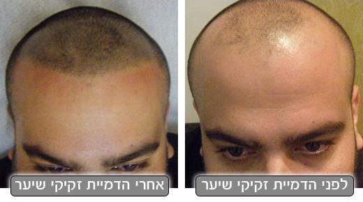 הדמיית זקיקי שיער אצל מיטל שמשי