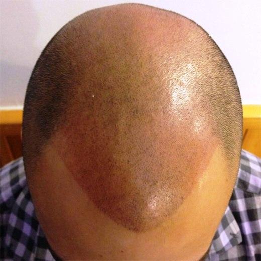 MY HAIR, הדמיית זקיקי שיער, אחרי