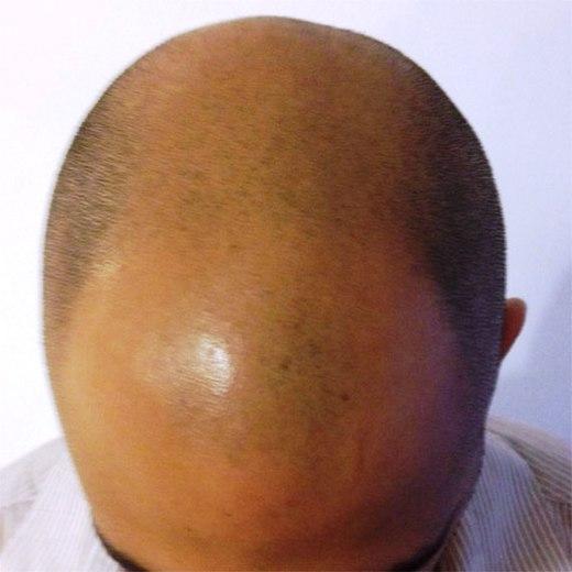 MY HAIR, הדמיית זקיקי שיער, לפני