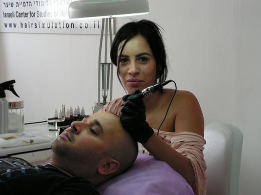 הדמיית זקיקי שיער – טפי סבלן