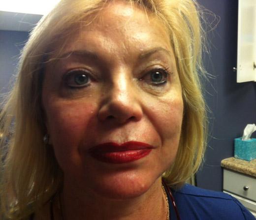 לאחר מילוי ותיחום שפתיים לאיפור קבוע