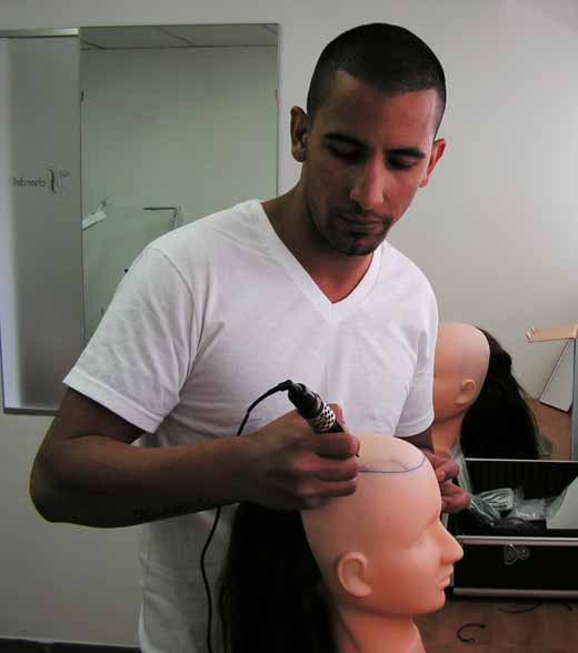 הדמיית זקיקי שיער אצל יריב גולן