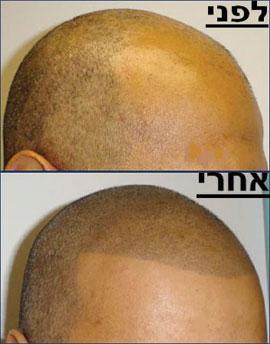מיקרופיגמנטציה (הדמיית זקיקי שיער) ואין לך קרחת. תמונה באדיבות עדי שנדל