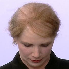 טריכוטילומניה - שאלות נפוצות. תמונה באדיבות רבקה זהבי פאות ותוספות שיער.