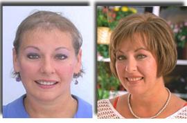 פאות רפואיות - פיתרון לנשירת שיער כתוצאה ממחלה