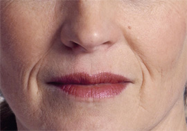 מתיחת פנים ללא ניתוח - לפני