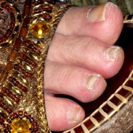 טיפול בפטרת ציפורניים - רחל סיטבון