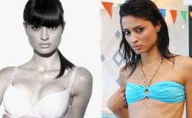"""ניראל - לפני ואחרי הגדלת חזה אצל ד""""ר קליין."""