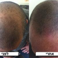 NPM מציגים - הדמיית זקיקי שיער