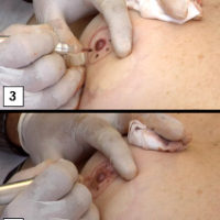 איפור קבוע - שימושים רפואיים