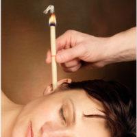 טיפול נרות הופי - SGR