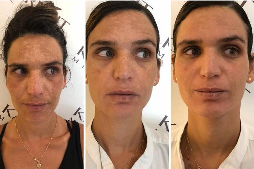 טיפול בכתמי עור - קרנית מלמד, קוסמטיקאית רפואית בכירה בתל אביב