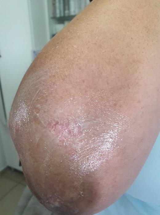 טיפול בפסוריאזיס – תוצאות מדהימות